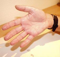 手掌多汗症の症状